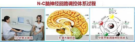 成都成华脑康医院详解:头痛的临床症状及治疗